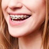 Ortodoncja dzieci i dorosłych